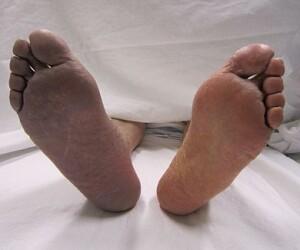 Trombosi arteriosa manifestatasi al piede destrto con cianosi