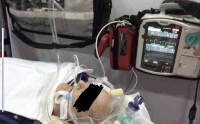 Vntiltore polmonare d'emergenza. Errori nella somministrazione di ossigeno hanno determinato psesso la morte del paziente-